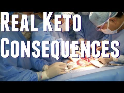 Ketosis Causes Long-Term DAMAGE. Ketogenic Diets Trigger Fight or Flight mode, HPA Axis, Liver